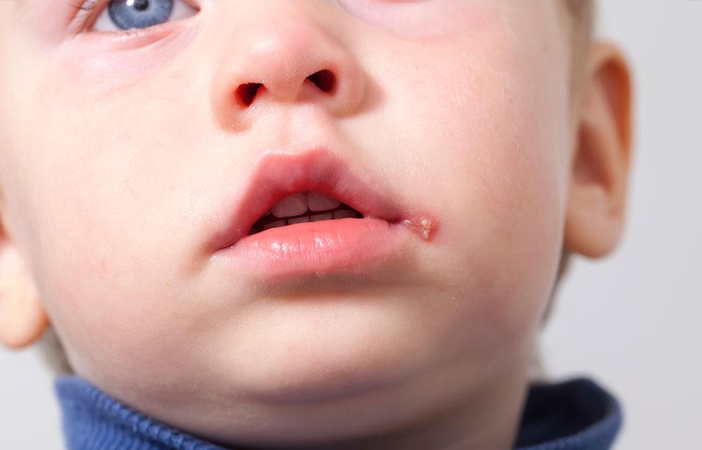 Lapset ja herpes suussa (herpes labialis).