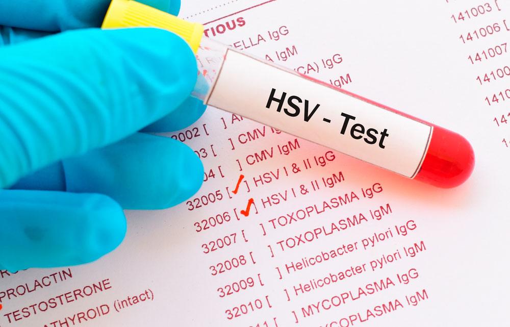 Herpes genitalis testi ja tulokset.