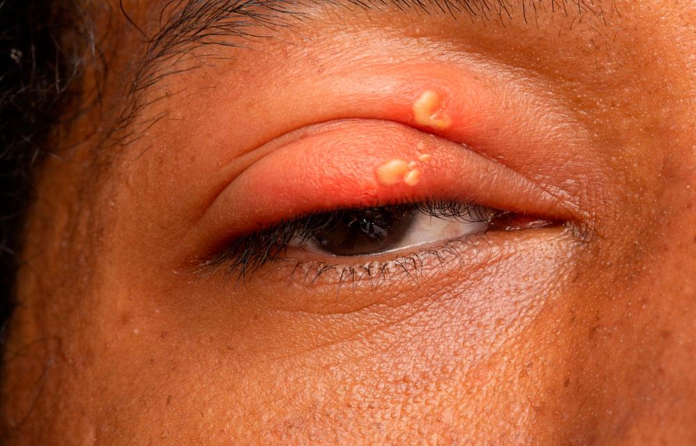 Herpes silmässä (herpes keratitis).
