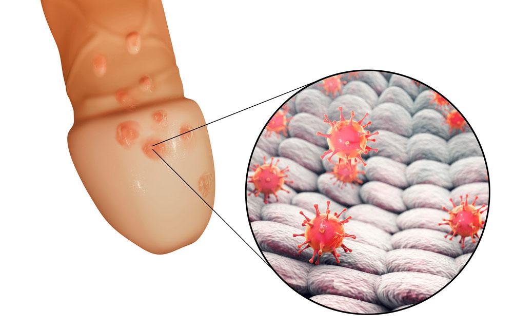 Herpes genitalis - herpesinfektio peniksessä.