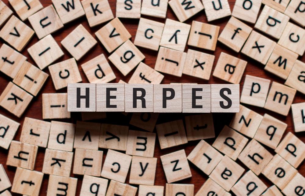 Sukupuoliherpes - herpes sukuelimissä.