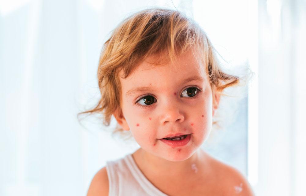 Herpeksen aiheuttama vesirokko lapsilla.